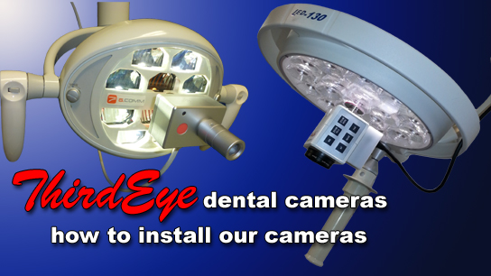 thirdeye dental cameras installation video